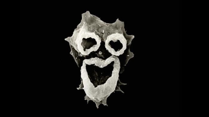 the mysterious brain-eating amoeba Naegleria fowleri, brain-eating amoeba revealed, image of brain-eating amoeba, clown face amoeba, clown face amoeba photo, brain eating amoeba, brain-eating amoeba clown face picture, picture of brain-eating amoeba