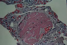 cardiac tissue
