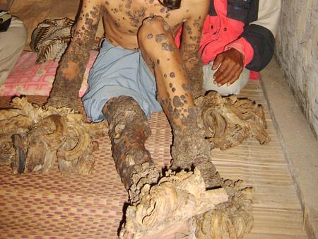 Mysterious half man half tree condition: Dede Koswara is ... - photo#23