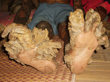 tree man in Indonesia: half man half tree, tree man, tree man, indonesia tree man, weird desease, extraordinary people, real ents, freak show, freaky people, freaky ent pleople, the half man half tree indonesian guy