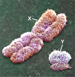 shape of x and y chromosomes