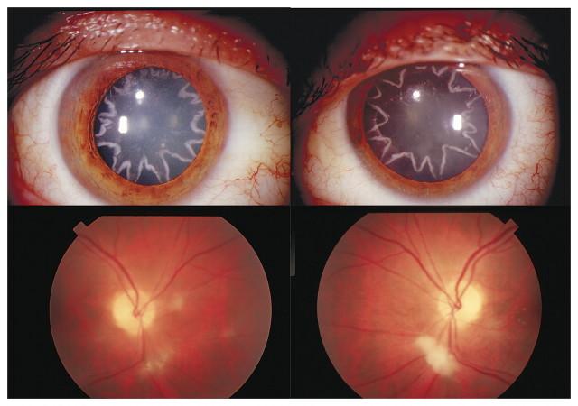 Ocular Manifestation of Electrical Burn: star-shaped cataracts, star-shaped cataracts photo, photo of star-shaped cataracts, medical mystery: star-shaped cataracts