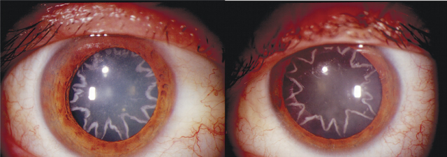Ocular Manifestation of Electrical Burn, Ocular Manifestation of Electrical Burn: star-shaped cataracts, star in the eyes after electrical shock, star-shaped cataract after electrical shock, star-shaped cataract star-shaped cataract after electical shock, electrical shock star-shaped cataracts, star-shaped cataracts photo, photos of star shaped cataracts, what makes star-shaped cataracts, weird phenomenon: star shaped cataracts, mysterious phenomenon: star-shaped cataracts, A 14,000-volt electrical shock gave this man star-shaped cataracts, A 14,000-volt electrical shock gave this man star-shaped cataracts