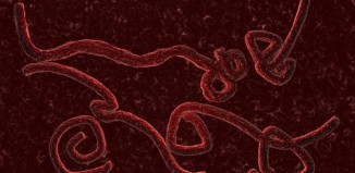 Ebola virus photo, ebola virus, mystery illness in Guinea, unknown illness guinea, super pandemic after mysterious illness kills 23 in Guinea, new mysterious illness in Guinea