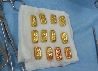 12 gold bars found in body of Indian businessman, strange news, 12 gold bars found in body of Indian businessman. Photo: The Indian Express, india man swallows gold bars, strange news: indian man swallows gold bars, weird news: indian businessman swallows gold bars, surprising news: indian man swallows gold bars, strange human behavior: 12 gold bars recovered from indian man stomach, weird news, strange things around the world, strange things india,