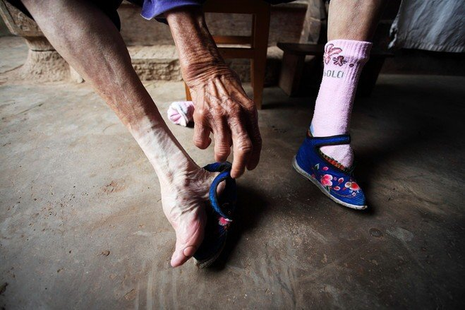 Foot Binding, Chinese Foot Binding, Another example of the sufferings these women had to go through during foot binding in China. Photo: China.org.cn