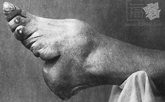 Chinese Foot Binding , terrible tradition: Chinese Foot Binding, terrible tradition: photo of Chinese Foot Binding, Bound foot without bandages, Bound foot without bandages. Photo: China.org.cn