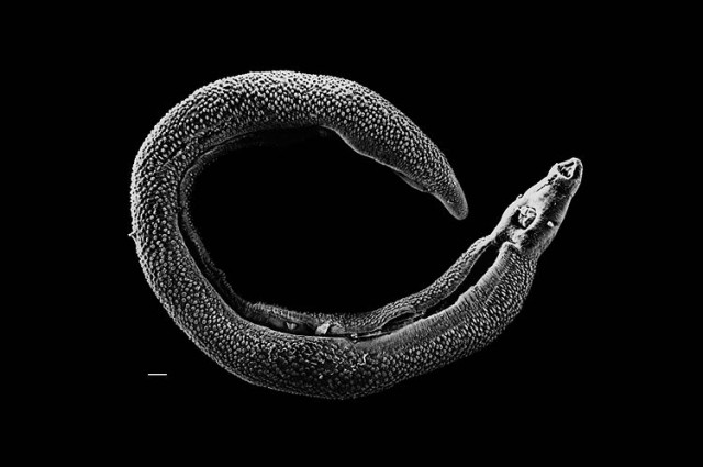 Schistosoma, Parasitic schistosoma worm. Photo: David Williams, Adult male schistosoma, Parasitic Worm Discovered In Ancient Tomb, The question of when and where schistosomes first started to cause disease in our ancestors is, however, still unanswered,