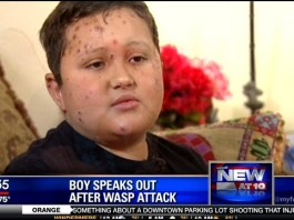 boy attacked by wasp in florida, boy survives wasp attack in florida june 2014, Jordan Alvarez,Jordan Alvarez attacked by wasp in florida june 2014 video, boy attacked by wasps in florida, wasps attack boy in florida june 2014, boy attacked by hundreds of wasps in Florida june 2014, boy attacked by wasps florida june 2014 video, video wasp attack june 2014 florida, young boy attacked by wasps in florida june 2014, wasp attack news june 2014, boy wasp june 2014 florida, wasp attack video, wasp attack news, young boy attacked by angry wasps in Florida june 2014, wasp attack boy florida june 2014, This boy, Jordan Alvarez, and his father were attacked by angry wasps in Florida. He explains his terrifying experience in the following video. Photo: My Fox Orlando video