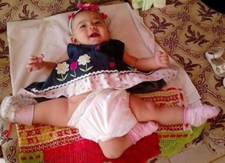 conjoined twin, conjoined twin ana paula, conjoined twin ana paula panama video, rare medical condition, rare medical condition: conjoined twin, ana paula conjoined twin video, ana paula conjoined twin from panama, Ana Paula from Panama is a conjoined twin. She was born with 3 legs and 3 kidneys. Doctors in LA will remove two of her legs during surgery in July 2014. Photo: KTLA video,Toddler left with three legs after being separated from conjoined twin arrives in U.S. for surgery, ana paula reconstructive surgery LA, Girl born with 3 legs to have 2 removed Todder in Los Angeles preparing for procedures, Girl Born as Conjoined Twin in Panama to Undergo Life-Changing Surgery in L.A., A 22-month-old girl who was born as a conjoined twin in Panama arrived in Los Angeles to undergo reconstructive surgery that she could not receive in her own country. Ana Paula was born in a rural village in Panama joined at the pelvis with her twin sister. (Credit: KTLA) Ana Paula was born in a rural village in Panama joined at the pelvis with her twin sister. (Credit: KTLA) Ana Paula was born joined at the pelvis with her twin sister in a rural village in Panama,