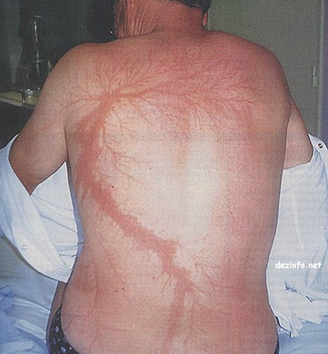 Lichtenberg figures , seven firefighters struck by lightning july 2014, firefighter struck by lightning july 2014 vermont, Lichtenberg figures on people, Lichtenberg figures lightning strikes people, Lichtenberg figures appear on people body when struck by lightning, Lichtenberg figures after lightning strikes, weird body painting after body struck by lightning, lightning strike, Lichtenberg figures can occur on people that are struck by lightning. Photo: Domart and Garet, NEJM