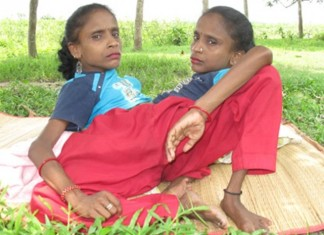 spider sisters, Ganga and Jamuna Mondal, Ganga and Jamuna Mondal - The Spider Girls are in love, Ganga and Jamuna Mondal - The Spider Girls photo, photo and video of Ganga and Jamuna Mondal - The Spider Girls, Ganga and Jamuna Mondal - The Spider Girls video, video Ganga and Jamuna Mondal - The Spider Girls, man loves Ganga and Jamuna Mondal - The Spider Girls, Ganga and Jamuna Mondal - The Spider Girls loves same man, spider sisters are in love, same boyfriend for spider sisters, spider girls are in love with the same man, siamese twins spider sisters are in love, one man for two girls: conjoinded twins spider sisters in love, conjoined twin, Conjoined Sisters Find Love With The Same Man