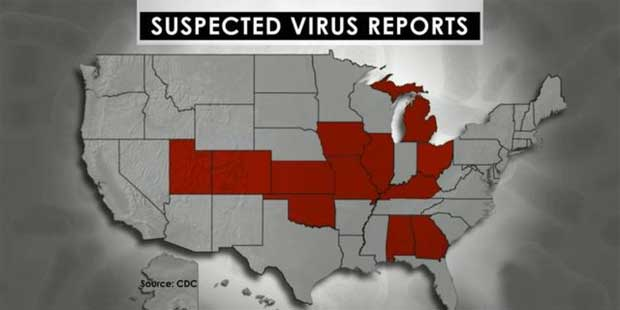 Enterovirus-D68, EV-D68, mystery EV-D68, us respiratory illness, us respiratory illness EV-D68, enterovirus-D68 infection 2014, Enterovirus-D68 2014 plague, A rare and mysterious respiratory illness, Enterovirus D68, also known as EV-D68 is sending hundreds of children to hospitals throughout the Midwest and Southeast. Map of the most affected US states,