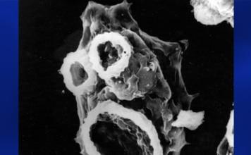 brain-eating amoeba, Naegleria fowleri, brain-eating amoeba photo, Naegleria fowleri photo, braineating amoeba The brain-eating amoeba Naegleria fowleri is not only dangerous, but also looks terrifying! Photo: Youtube video, The Macabre Clown Face of the Mysterious Brain-Eating Amoeba Known as Naegleria Fowleri