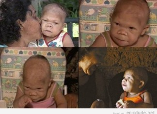 Maria Audete do Nascimento, Maria Audete do Nascimento disease, woman that looks like toddler, 32 year-old woman that looks like a child, adult that look like toddler, brazilian woman that looks like child, Maria Audete do Nascimento brazilian woman that looks like child, Maria Audete do Nascimento is 32 and looks like a toddler