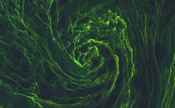 Eye algal storm, eye of an algal storm, eye of an algae bloom, algae bloom baltic sea, algae bloom looks like hurricane