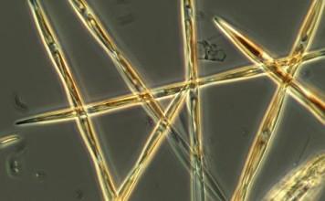 toxic algae west coast, toxic algae bloom west coast, Toxic algae may threaten West Coast marine economy for years, Microscopy photo of the the algae pseudo-nitzchia, which produces the toxic domoic acid. Photo: provided by NOAA Fisheries