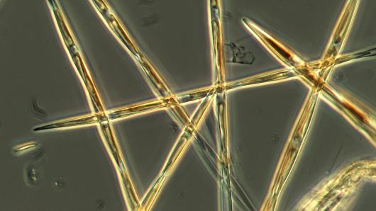 toxic algae west coast, toxic algae bloom west coast, Toxic algae may threaten West Coast marine economy for years, Microscopy photo of the the algae pseudo-nitzchia, which produces the toxic domoic acid. Photo: provided by NOAA Fisheries