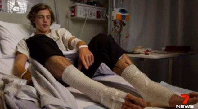 Mysterious flesh-eating bugs attack teen in Australia, Mysterious flesh-eating bugs attack teen in Australia video, Mysterious flesh-eating bugs attack teen in Australia picture, Mysterious flesh-eating bugs attack teen in Australia august 2017 video picture