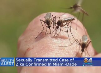 first sexually transmitted case of Zika confirmed in Miami, first sexually transmitted case of Zika confirmed in Miami video, first sexually transmitted case of Zika confirmed in Miami-dade, first sexually transmitted case of Zika confirmed in Miami-dade video