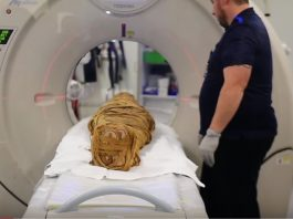 ancient mummy diagnosed with cancer, ancient egyptian mummy diagnosed with cancer