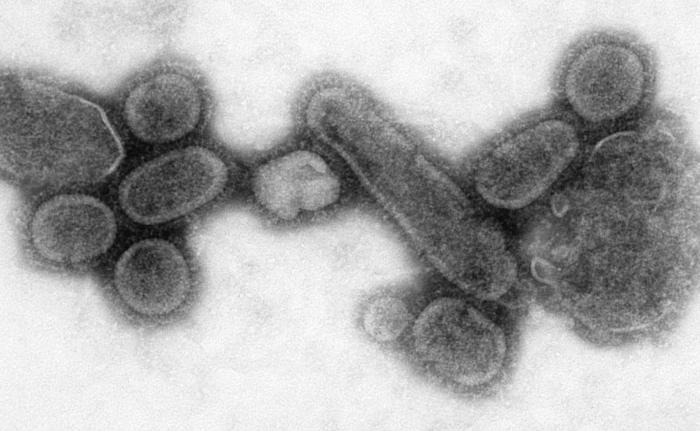 spanish flu 1918, next pandemic, next world pandemic, next world pandemic influenza