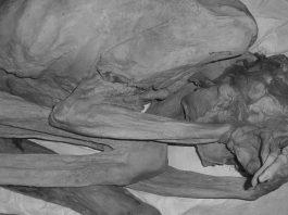 oldest tattooed mummy, Oldest tattooed mummy found in Egypt, 5000 year old Oldest tattooed mummy found in Egypt