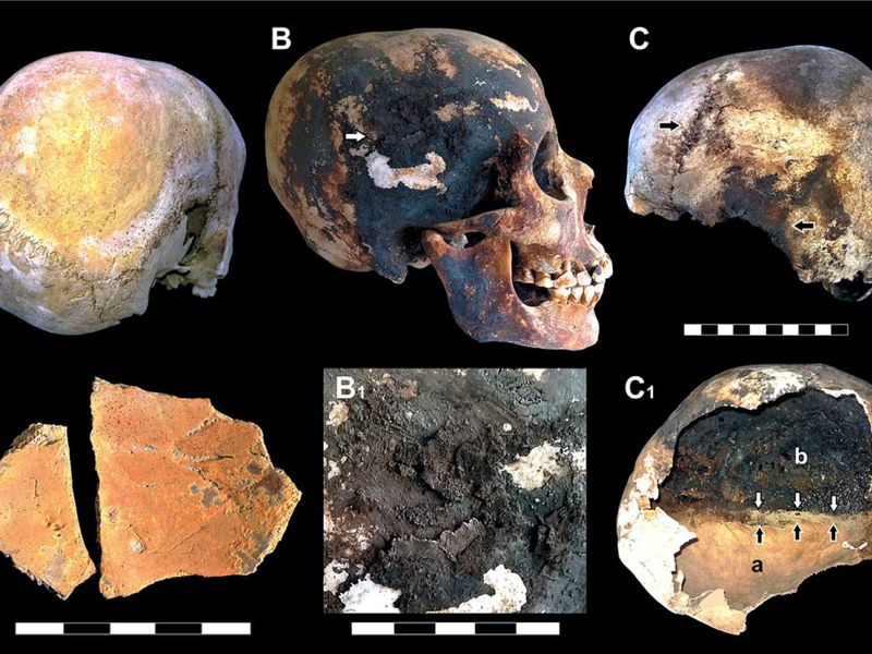 exploded skulls vesuvius, vesuvius eruption, vesuvius volcanic eruption, how people died during vesuvius eruption