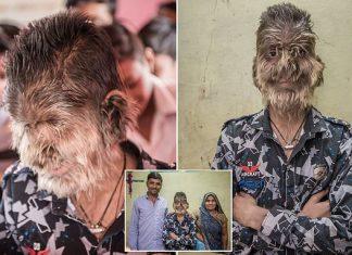 real-life werewolf, real-life werewolf INDIA, india real-life werewolf, real-life werewolf pictures