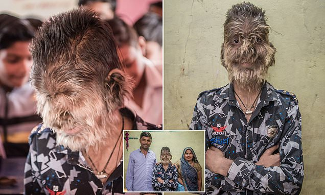 real-life werewolf, real-life werewolf INDIA, india real-life werewolf, real-life werewolf pictures