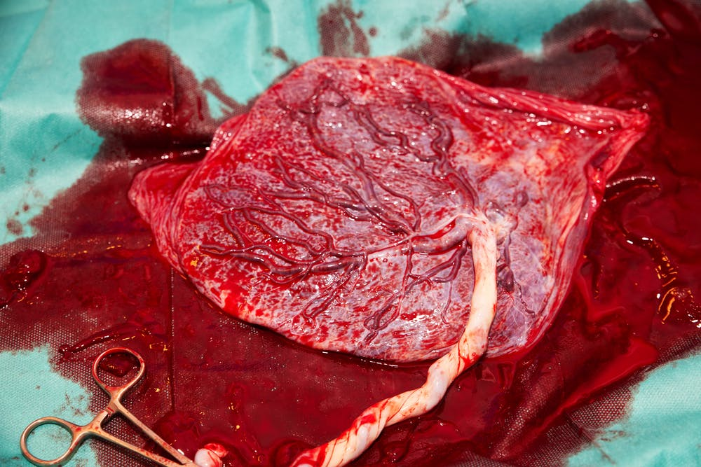 cannibalism, placenta eating, no placenta eating
