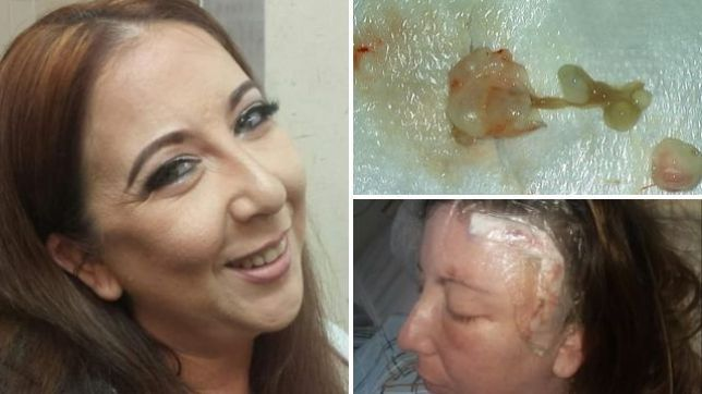 Video: It was a tapeworm, not a brain tumor, Woman's Brain Cancer Scare Turns Out to Be Tapeworm