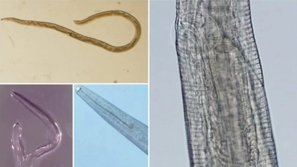 A Second Woman Has Gotten Parasitic Eye Worms, and Surely We're All Next, nebraska parasitic eye worm