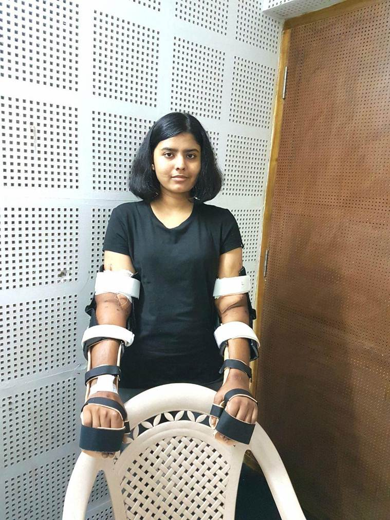 Transplanted Hands Change Color and Shape, Freeky hand transplatation in India, Freeky hand transplatation in India: Her transplanted hands changed in shape and color after the operation