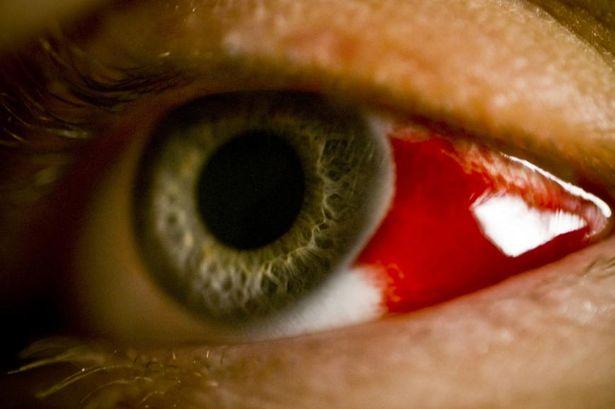 Disease X, bleeding eye fever, bleeding eye fever ethiopia, Disease X might be bleeding eye fever in Ethiopia