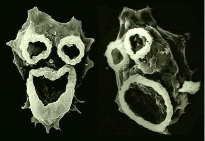 brain-eating amoeba florida, brain-eating amoeba florida july 2020, brain-eating amoeba florida case, brain-eating amoeba florida news, brain-eating amoeba florida report