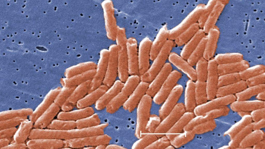 salmonella outbreak 2020 usa, salmonella outbreak 2020 us, salmonella outbreak 2020 usa cdc