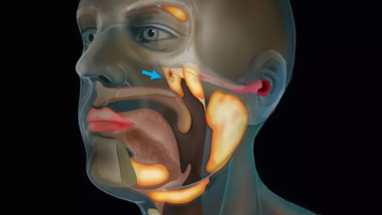 Researchers have discovered a new organ in the throat while carrying out research on prostate cancer