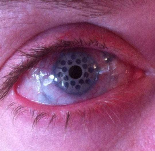 keratoprosthesis, how is it after a keratoprosthesis how does your eye looks like after a keratoprosthesis