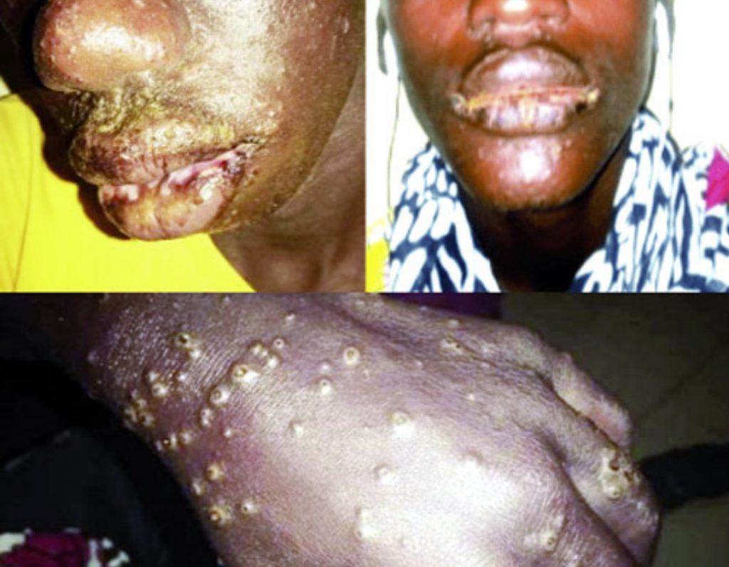 senegal mysterious disease fishermen, Mysterious disease hit more than 500 fishermen in Senegal