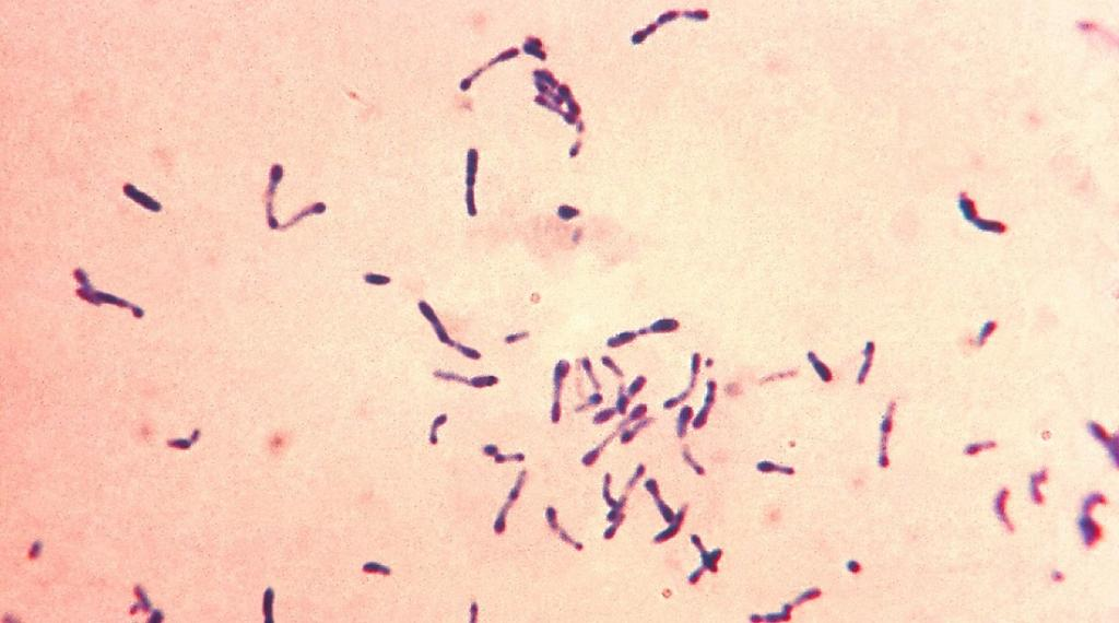 Diphtheria is primarily caused by the bacterium Corynebacterium diphtheriae