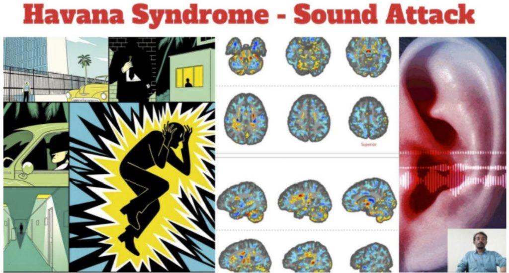 havana syndrome sound attack, havana syndrome sound attack video, havana syndrome sound attack news, havana syndrome sound attack update